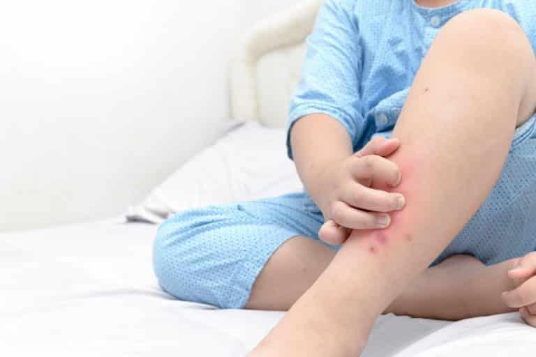 טיפול בהתקפי גירוד - אטופיקום